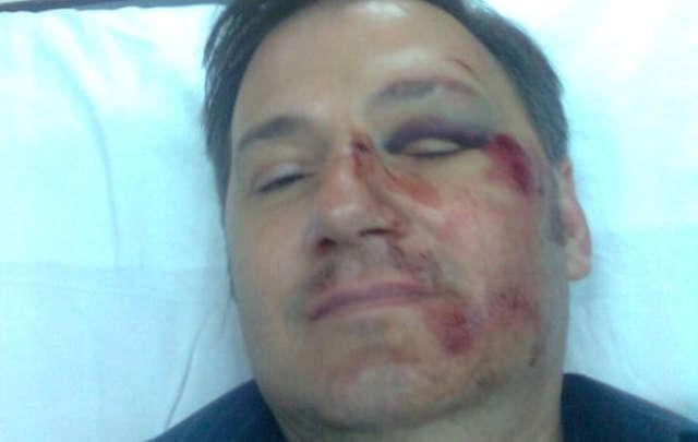 El docente que fue ferozmente atacado por un alumno y su madre.