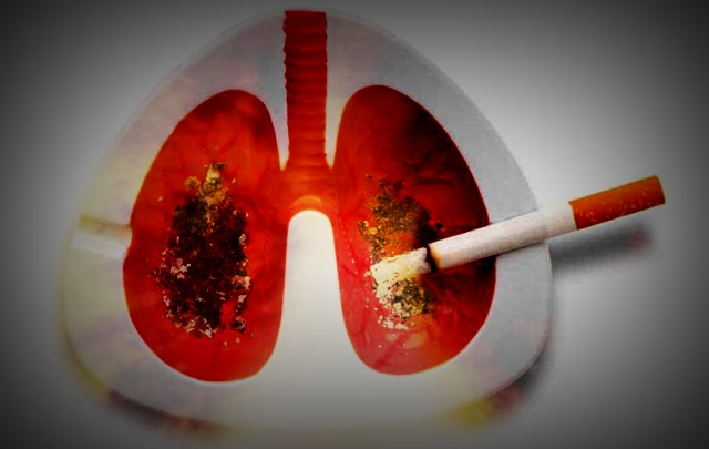 Cáncer de pulmón.