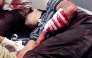Los asaltantes sufrieron diversos cortes tras la defensa del vecino con una katana.